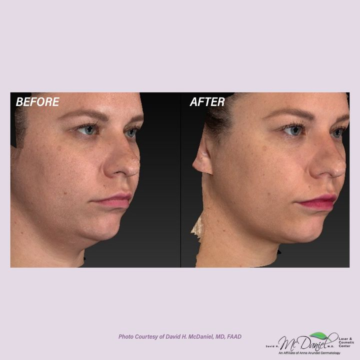 Photos from McDaniel Laser and Cosmetic Center's post